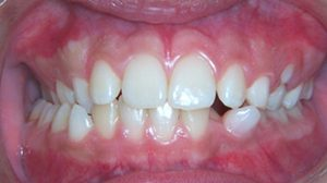 dental-midlines